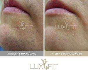 Laser Haarentfernung Vorher/Nachher ⋆ LuxFit Stuttgart